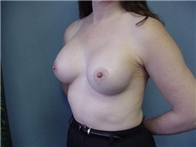Breast Augmentation After Photo by Anne Taylor, MD, MPH; Worthington, OH - Case 3659