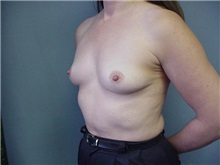 Breast Augmentation Before Photo by Anne Taylor, MD; Worthington, OH - Case 3659