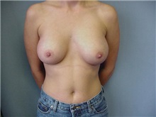Breast Augmentation After Photo by Anne Taylor, MD, MPH; Worthington, OH - Case 3679