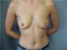 Breast Augmentation Before Photo by Anne Taylor, MD, MPH; Worthington, OH - Case 3679