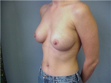 Breast Augmentation After Photo by Anne Taylor, MD; Worthington, OH - Case 3679