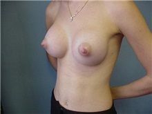 Breast Augmentation After Photo by Anne Taylor, MD, MPH; Worthington, OH - Case 3699