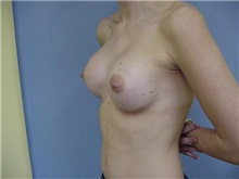 Breast Augmentation After Photo by Anne Taylor, MD, MPH; Worthington, OH - Case 3719