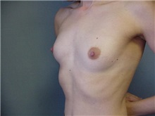 Breast Augmentation Before Photo by Anne Taylor, MD, MPH; Worthington, OH - Case 3719