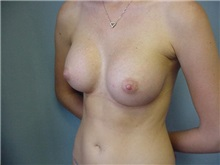 Breast Augmentation After Photo by Anne Taylor, MD, MPH; Worthington, OH - Case 3779