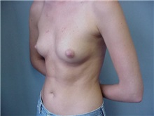 Breast Augmentation Before Photo by Anne Taylor, MD, MPH; Worthington, OH - Case 3779