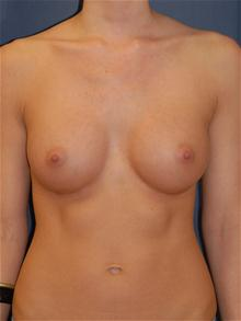 Breast Augmentation After Photo by Michael Eisemann, MD; Houston, TX - Case 27419