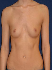 Breast Augmentation Before Photo by Michael Eisemann, MD; Houston, TX - Case 27419