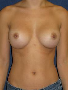 Breast Augmentation After Photo by Michael Eisemann, MD; Houston, TX - Case 27420
