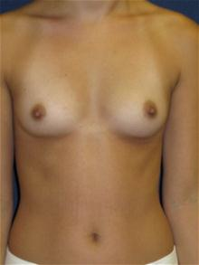 Breast Augmentation Before Photo by Michael Eisemann, MD; Houston, TX - Case 27420