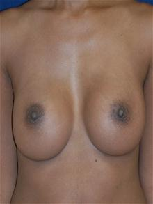 Breast Augmentation After Photo by Michael Eisemann, MD; Houston, TX - Case 27421