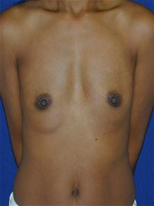 Breast Augmentation Before Photo by Michael Eisemann, MD; Houston, TX - Case 27421