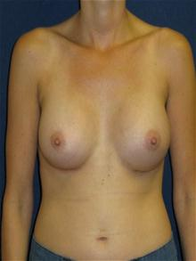 Breast Augmentation After Photo by Michael Eisemann, MD; Houston, TX - Case 27423