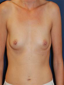 Breast Augmentation Before Photo by Michael Eisemann, MD; Houston, TX - Case 27423