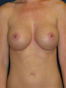 Breast Augmentation After Photo by Michael Eisemann, MD; Houston, TX - Case 27424
