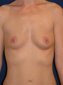 Breast Augmentation Before Photo by Michael Eisemann, MD; Houston, TX - Case 27424