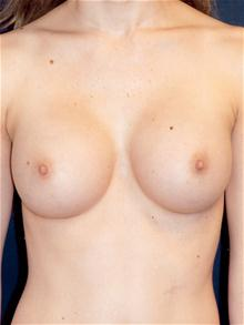 Breast Augmentation After Photo by Michael Eisemann, MD; Houston, TX - Case 27425