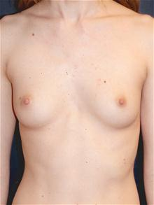 Breast Augmentation Before Photo by Michael Eisemann, MD; Houston, TX - Case 27425