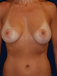 Breast Lift After Photo by Michael Eisemann, MD; Houston, TX - Case 27427