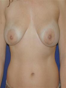 Breast Lift Before Photo by Michael Eisemann, MD; Houston, TX - Case 27427
