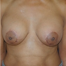 Breast Lift After Photo by Michael Eisemann, MD; Houston, TX - Case 27428