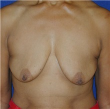 Breast Lift Before Photo by Michael Eisemann, MD; Houston, TX - Case 27428
