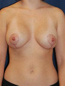 Breast Lift After Photo by Michael Eisemann, MD; Houston, TX - Case 27429