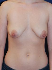 Breast Lift Before Photo by Michael Eisemann, MD; Houston, TX - Case 27429