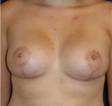Breast Lift After Photo by Michael Eisemann, MD; Houston, TX - Case 27431