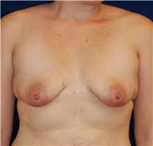 Breast Lift Before Photo by Michael Eisemann, MD; Houston, TX - Case 27431