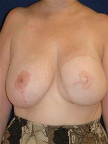 Breast Reconstruction After Photo by Michael Eisemann, MD; Houston, TX - Case 27441