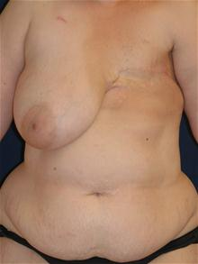 Breast Reconstruction Before Photo by Michael Eisemann, MD; Houston, TX - Case 27441