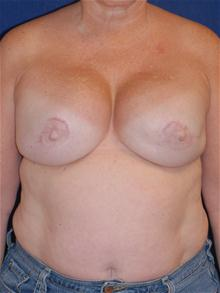 Breast Reconstruction After Photo by Michael Eisemann, MD; Houston, TX - Case 27442
