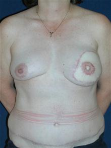 Breast Reconstruction After Photo by Michael Eisemann, MD; Houston, TX - Case 27443
