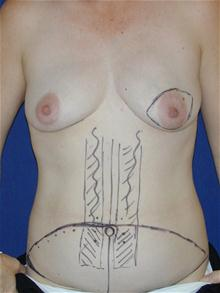 Breast Reconstruction Before Photo by Michael Eisemann, MD; Houston, TX - Case 27443