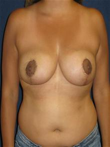 Breast Reduction After Photo by Michael Eisemann, MD; Houston, TX - Case 27444