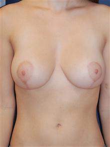 Breast Reduction After Photo by Michael Eisemann, MD; Houston, TX - Case 27445