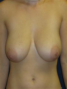 Breast Reduction Before Photo by Michael Eisemann, MD; Houston, TX - Case 27445