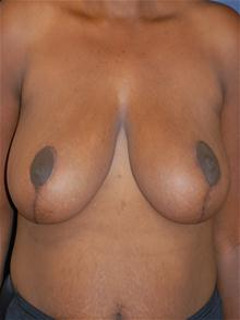 Breast Reduction After Photo by Michael Eisemann, MD; Houston, TX - Case 27446