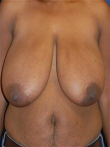 Breast Reduction Before Photo by Michael Eisemann, MD; Houston, TX - Case 27446