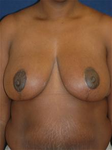 Breast Reduction After Photo by Michael Eisemann, MD; Houston, TX - Case 27447