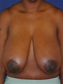 Breast Reduction Before Photo by Michael Eisemann, MD; Houston, TX - Case 27447
