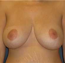 Breast Reduction After Photo by Michael Eisemann, MD; Houston, TX - Case 27448