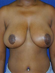 Breast Reduction After Photo by Michael Eisemann, MD; Houston, TX - Case 27449