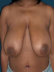 Breast Reduction Before Photo by Michael Eisemann, MD; Houston, TX - Case 27449