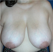 Breast Reduction Before Photo by Michael Eisemann, MD; Houston, TX - Case 27450