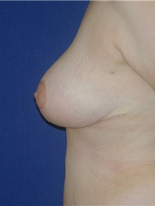 Breast Reduction After Photo by Michael Eisemann, MD; Houston, TX - Case 27450