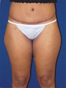 Tummy Tuck After Photo by Michael Eisemann, MD; Houston, TX - Case 27452