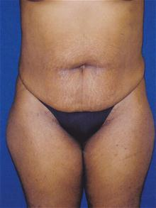 Tummy Tuck Before Photo by Michael Eisemann, MD; Houston, TX - Case 27452
