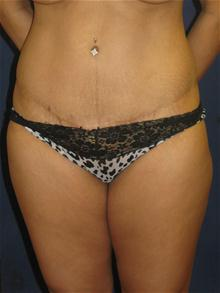 Tummy Tuck After Photo by Michael Eisemann, MD; Houston, TX - Case 27453